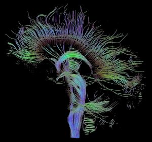 Tractographic reconstruction of neural connections by diffusion tensor imaging (DTI)